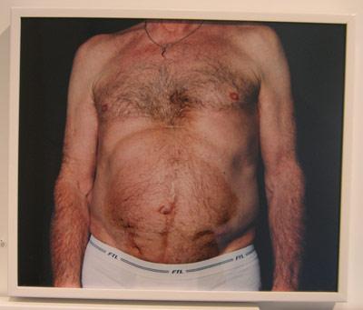 Jesse-Burke-belly.jpg